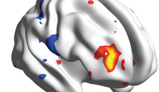 プラセボ効果に関わる脳部位が特定!痛みを抑えるスイート・スポット